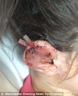 Girl, 11, spends NINE DAYS in hospital on a drip after newly-pierced ...