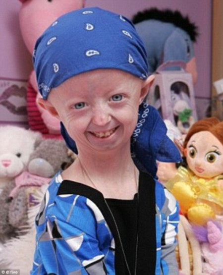 2740419F00000578-3024265-Hayley_Okines_who_suffered_a_rare_genetic_condition_that_gave_he-m-127_1428066421524
